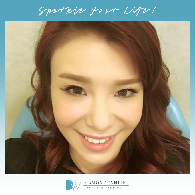 Poppy Teeth Whitening Hong Kong
